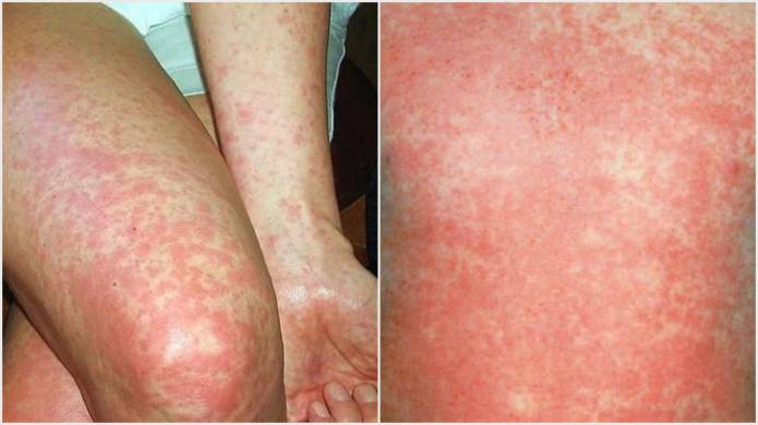 somerset news: scarlet fever on the increase in somerset - yeovil, Cephalic Vein