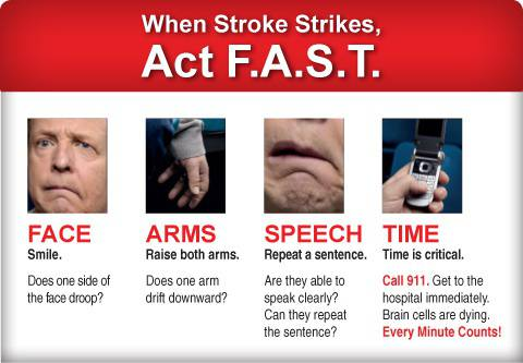 how to tell if someone is having a stroke